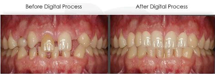 dental photo before and after treatment 1