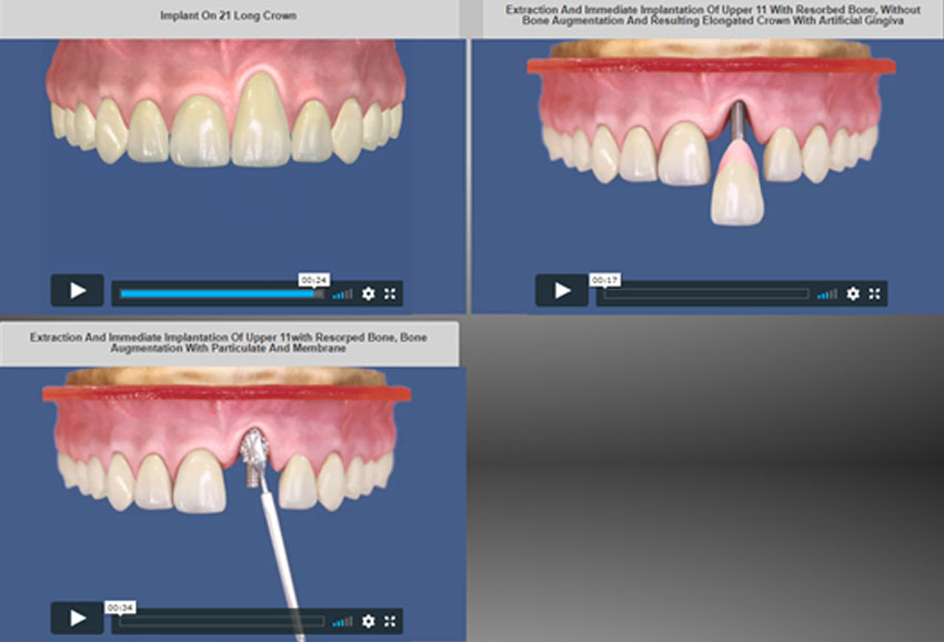 3 animations of dental implant