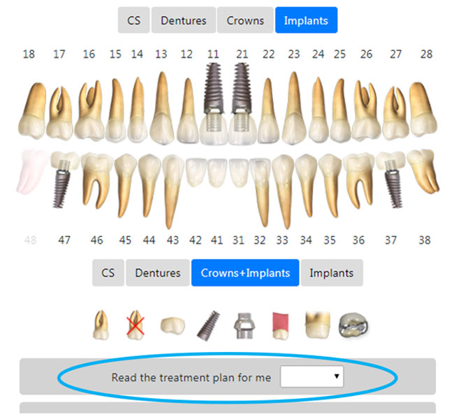 3D models of crowns and implants 2