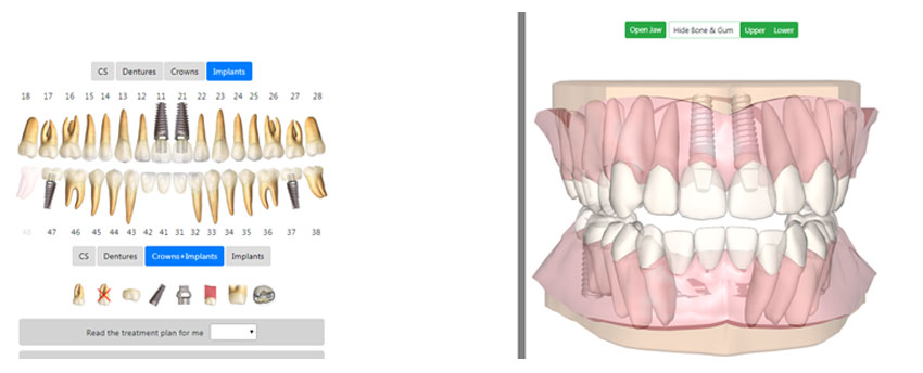 3D models of crowns and implants 3